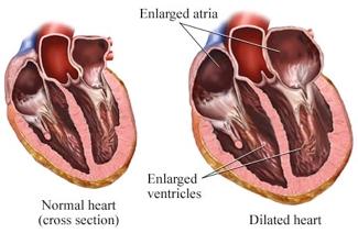 dilated cardiomyopathy, Skeleton