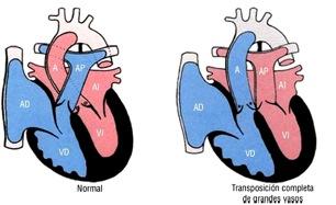 Cardiopatia congenita cianogena